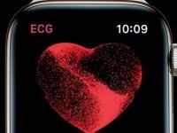 Apple наконец-то добавила функцию получения ЭКГ своим умным часам Watch Series 4