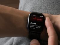 Умные часы Apple Watch следующего поколения станут ещё более полезными в вопросе отслеживания здоровь